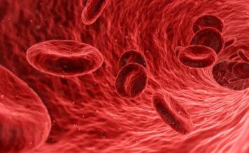 kanker darah