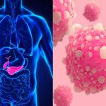 gejala kanker pankreas