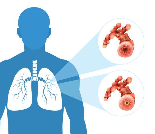 gejala kanker paru