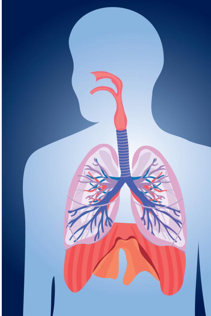 penyakit kanker paru